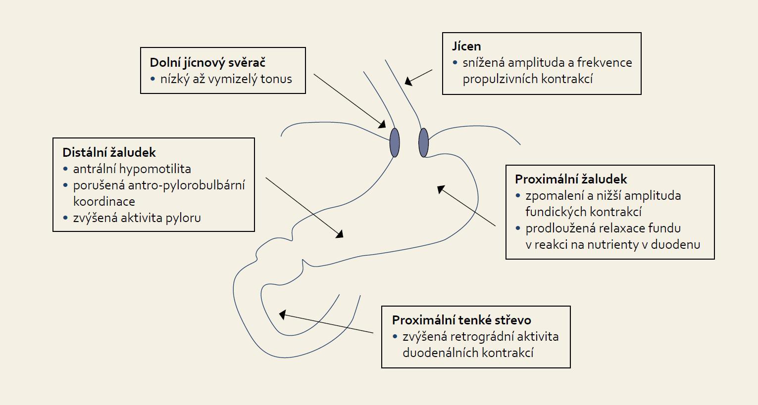 Patofyziologie dysfunkce horní části trávicího traktu u kriticky nemocných. Fig. 1. Pathophysiology of upper gastrointestinal tract dysfunction in critically ill patients.