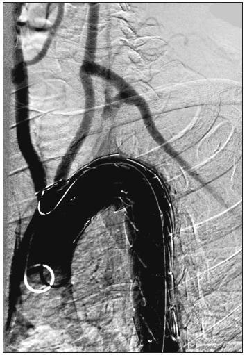 54-ročný muž s aneuryzmatickou dilatáciou anomálne odstupujúcej arteria subelavia dextra (arteria lusoria). Stav po implantácii hrudného stentgraftu do oblasti aortálneho oblúka a dodilatovaní stentgraftu. Digitálna subtrakčná angiografia aortálneho oblúka a supraaortových vetiev. Fig. 5. A54-year old male with aneurysmal dilatation of an abnormal arteria subclavia dextra (arteria lusoria). Following thoracic stentgraft implantation into the aortic arch region and completion of the stentgraft dilation. Digital subtraction angiography of the aortic arch and supraaortic branches.