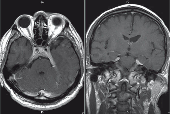 MR mozku, postkontrastní T1 vážené obrazy v axiální/koronární rovině; patologické pachymeningeální ztluštění tentoria – kazuistika 1.