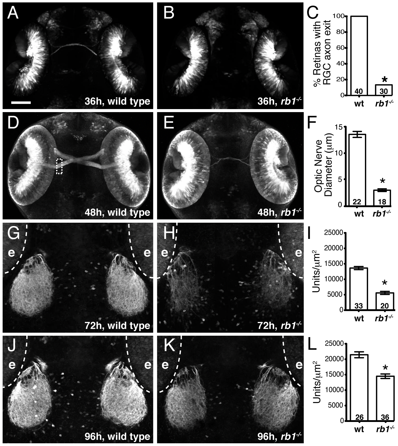 Rb1-deficient embryos possess delayed retinotectal projection.