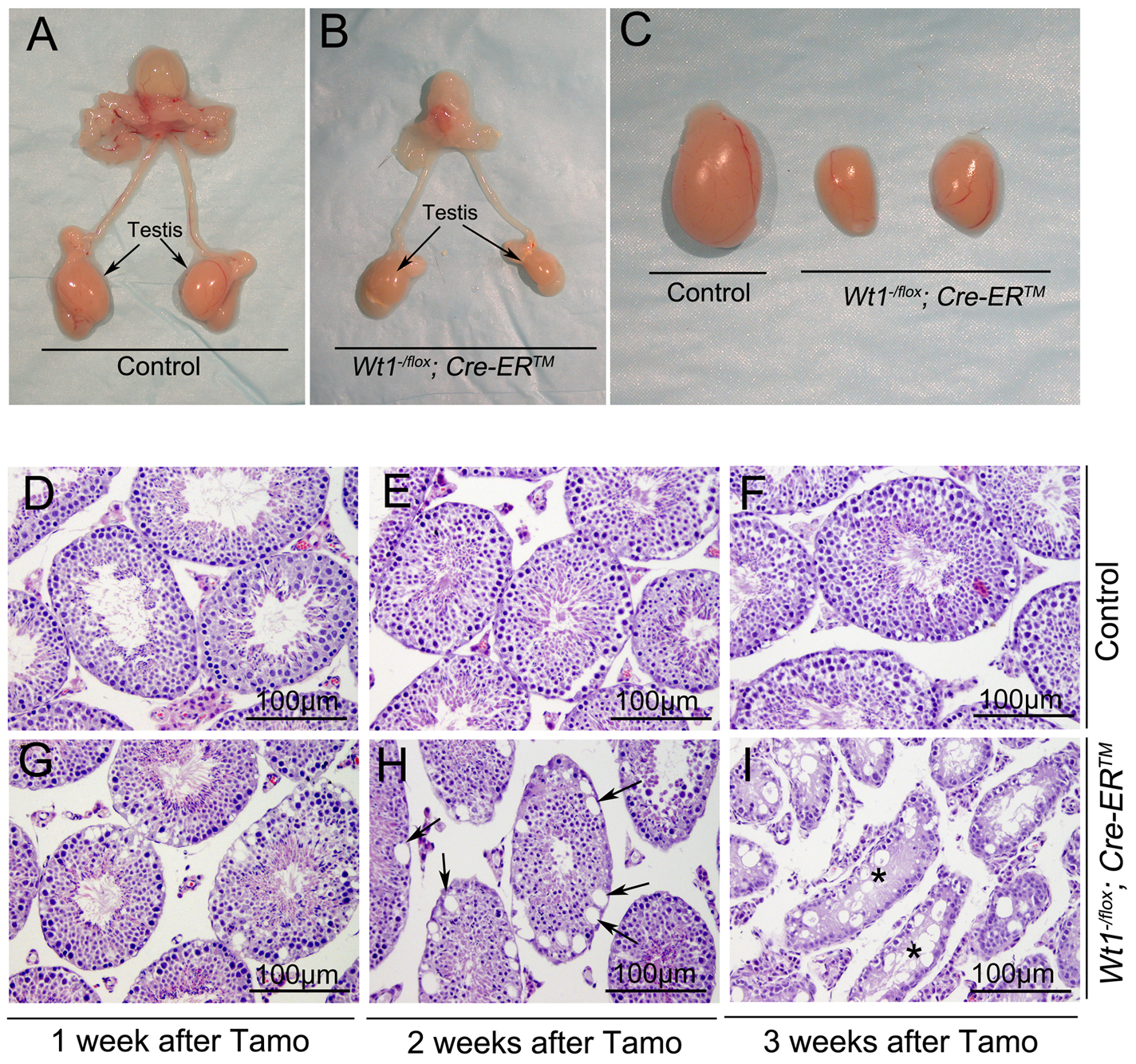 Inactivation of <i>Wt1</i> results in seminiferous tubule atrophy and testis hypoplasia.