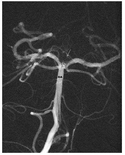 Aneuryzma v terminální části bazilární tepny po ošetření koily – výduť je vyplněna spirálkami, chybí krevní náplň vaku – BA – bazilární tepna Fig. 6: Endovascular coil treatment of the basilar tip aneurysm – the sac is filled by coils – there is no blood inflow into the aneurysm – BA – basilar artery