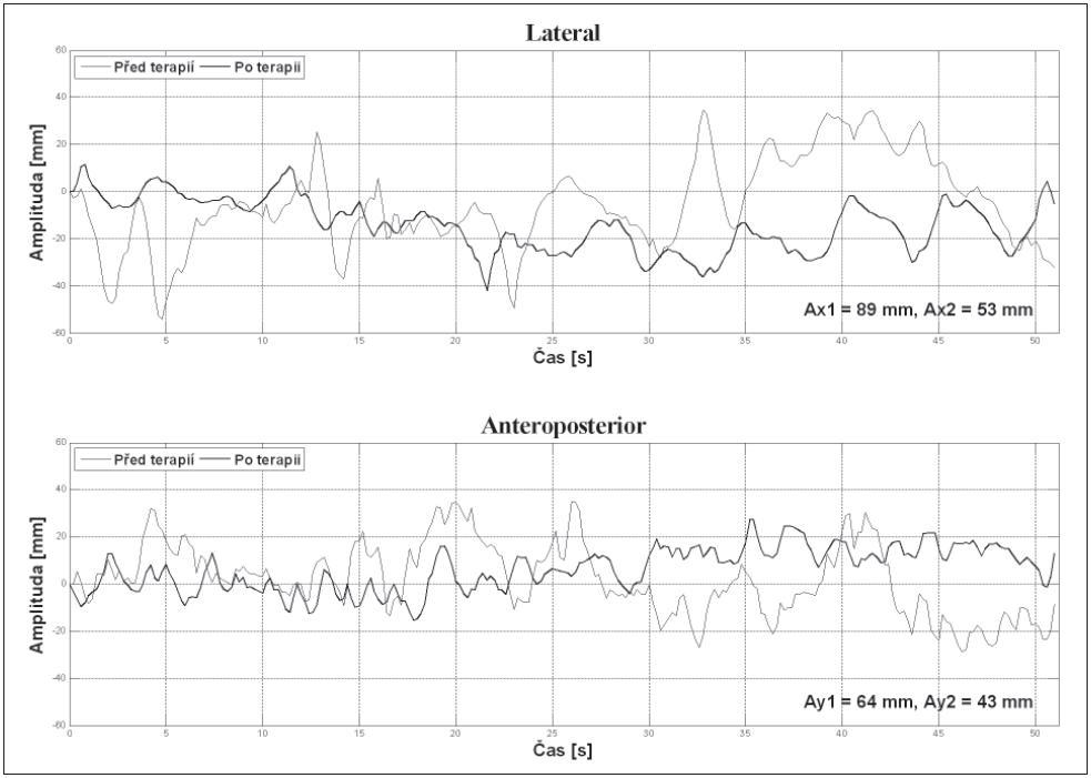 Porovnání stabilogramů před terapií a po jejím skončení. Ax: amplituda stabilogramu v latero-laterálním směru, Ay: amplituda stabilogramu v antero-posteriorním směru. 1: před terapií, 2: po jejím skončení.