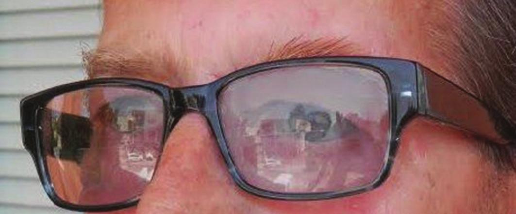 Epitéza upevnená na rám okuliarov