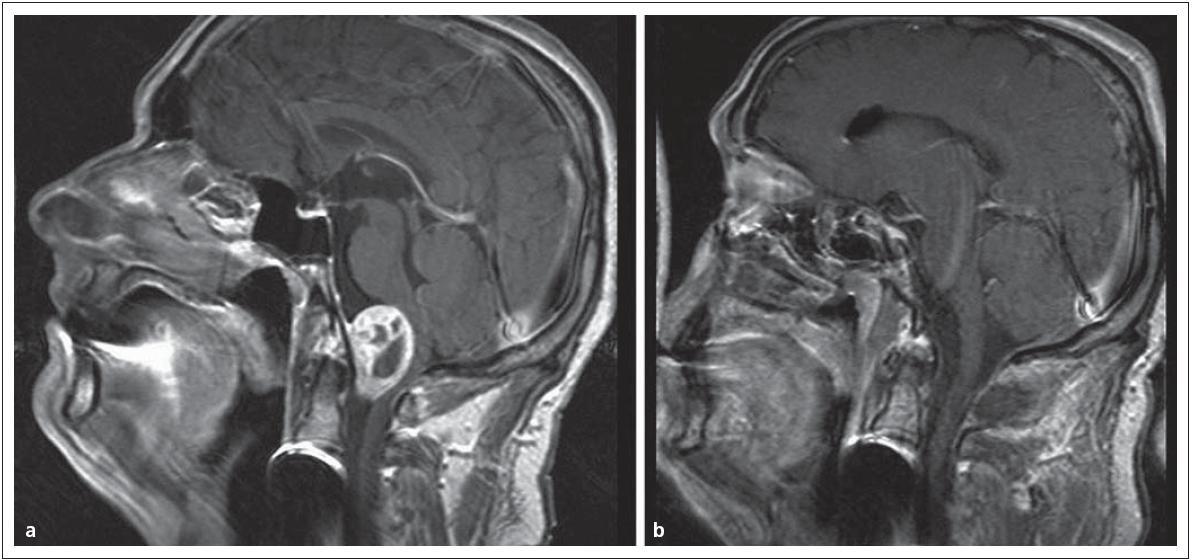 """Meningeom v přední části foramen occipitale magnum. Obr. 13a) V obraze MR před operací. Obr. 13b) Po radikálním odstranění """"far lateral přístupem""""."""