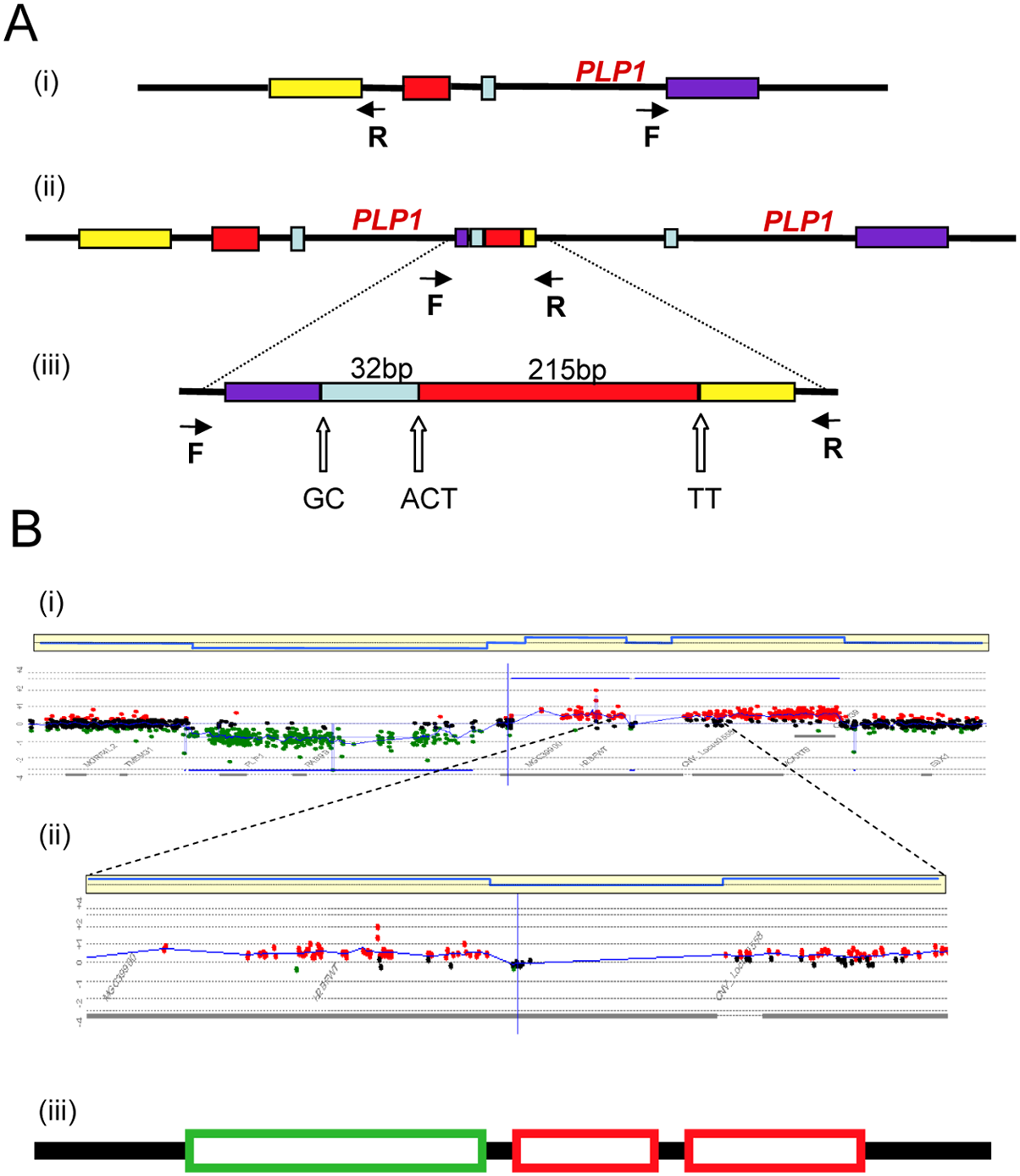 Complex rearrangements involving <i>PLP1</i> detected by junction analysis (A) and oligonucleotide array comparative genomic hybridization analysis (B) <em class=&quot;ref&quot;>[22]</em>.
