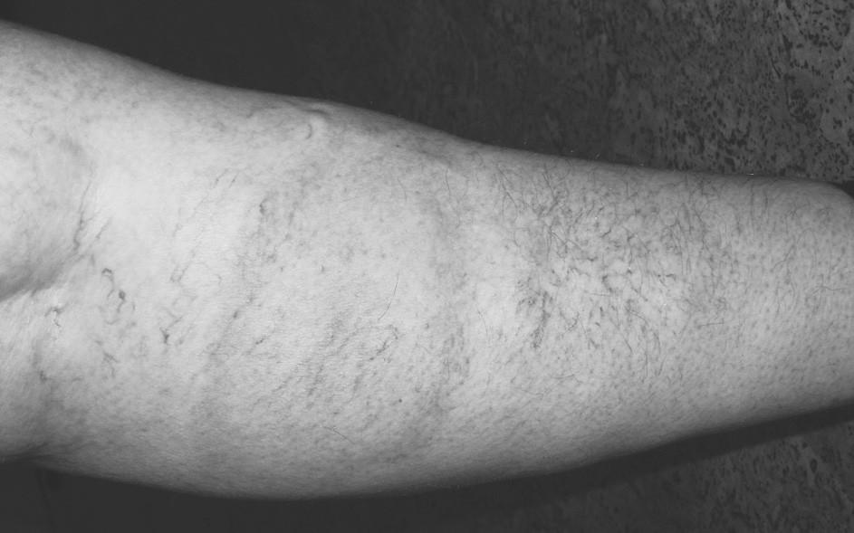 Typické E. m. u 54leté ženy na levém lýtku. Zvětšující se skvrnu pozorovala již 3 týdny. Klíště nepozorovala. Ústup po 4 baleních Deoxymykoinu. Výskyt v 8. měsíci.
