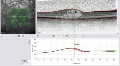 OCT snímek – difuzní diabetický makulární edém před intravitreální injekcí Lucentisu.