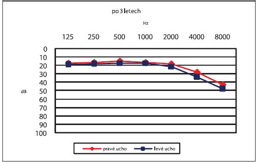 Audiogramy vytvořené vždy po 1 roce od ukončení CHT dle protokolu SJMB 96.