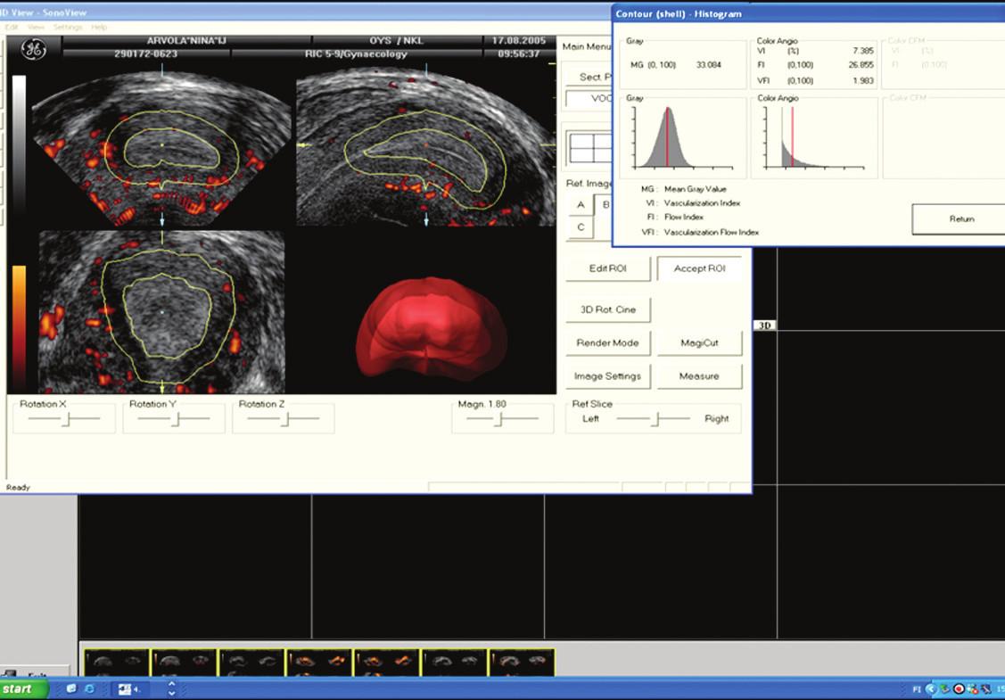 """Vymezení objemu subendometriální oblasti při užití počítačové 3D rekonstrukce ,,pláštového"""" zobrazení. V tomto případě byla oblast subendometria zvolena na hranici 5 mm. Zobrazení vaskularizace subendometria pomocí 3D power doppler angiografie. VI, FI, VFI. Převzato z [24]."""