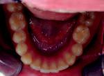 Obr. 2d. Intraorální pohled na dolní zubní oblouk 4 roky po sejmutí pevného ortodontického aparátu.