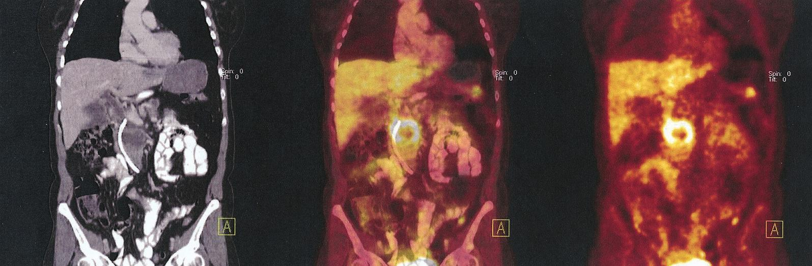 Benigní cystadenom kaudy pankreatu. V CT fázi ložisko v kaudě, bez korelátu v PET fázi Fig. 3. Benign cystadenoma of the cauda. The CT phasebearing in the cauda without correlate on the PET phase