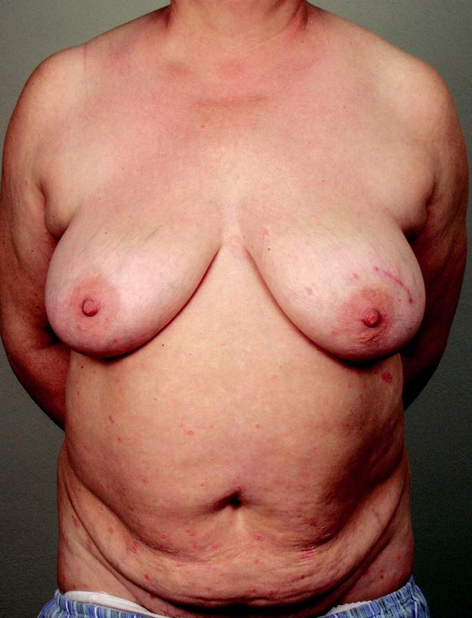 Obr. 2a. Pacientka ze skupiny A, zdravá, nosička BRCA genu nesoucí vysoké riziko vzniku karcinomu prsu bez předchozí operace; stav před operací