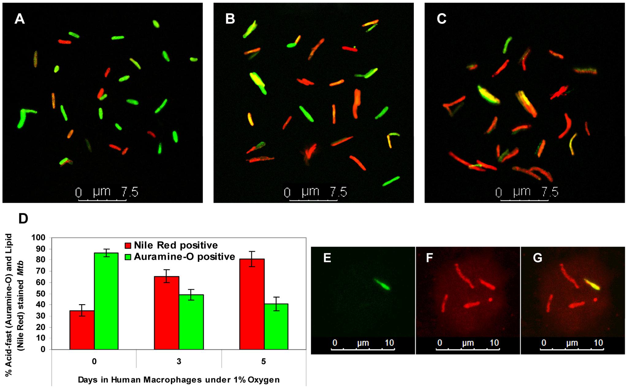 <i>Mtb</i> inside hypoxic macrophages loses acid fastness and accumulates lipid droplets.