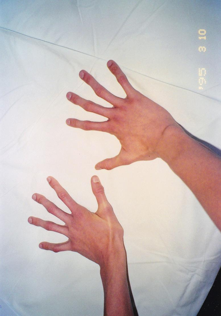 Pavúčie prsty. Fig. 3. Arachnodactyly (spider-like fingers).