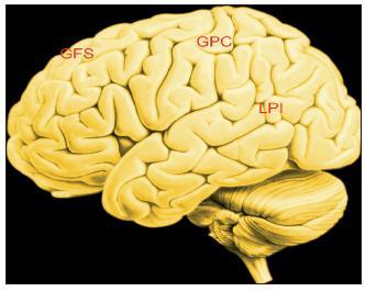 Obr. 4A. Zevní plocha levé hemisféry Legenda: GFS – Gyrus frontalis superior; GPC – Gyrus postcentralis; LPI – Lobulus parietalis inferior (dolní část temenního laloku, Brodmanova oblast 40,39).