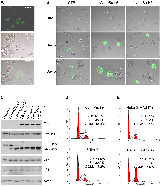 ΔN-I-κBα prevents Tax-induced senescence.