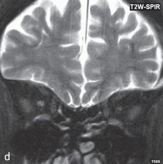 Hypersignální ložiska v T2 váženém obraze v oblasti putamen (a), hyposignální v T1 váženém obraze (b). Subkortikálně frontálně bilaterálně, více vlevo a okcipitálně oboustranně jsou patrná pruhovitá ložiska smíšeného signálu, hyposignální oblasti jsou korelátem hemoragie, nejlépe jsou tato ložiska patrná na gradientní sekvenci (c). Atrofie optického nervu vlevo (d).