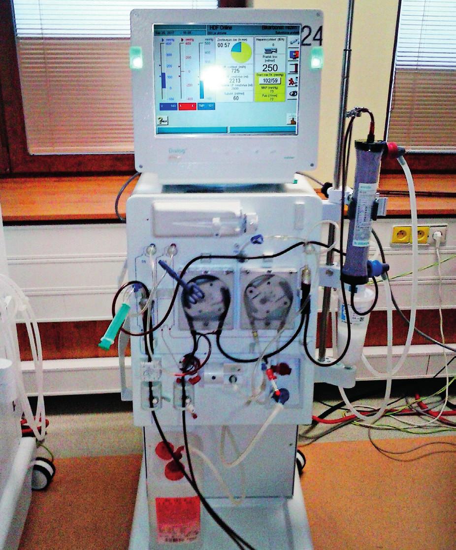 Dialyzačný prístroj