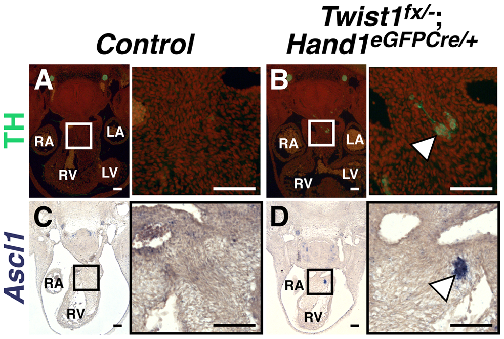 Ectopic sympathetic-like neurons are detectable in <i>Twist1</i>;<i>Hand1<sup>eGFPCre</sup></i> CKO APCs.