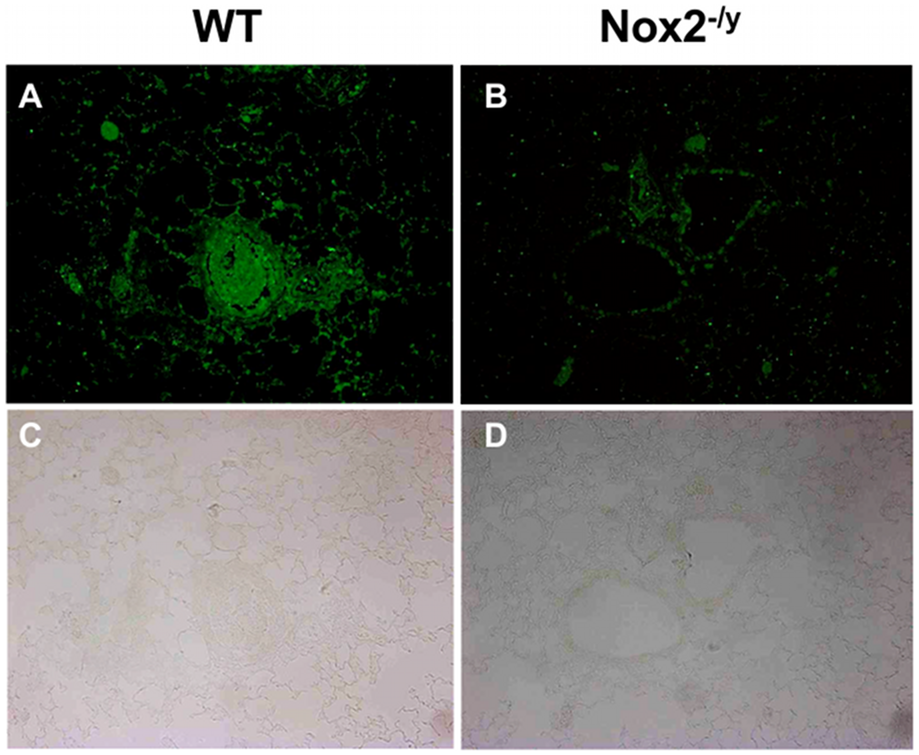 Peroxynitrite production in mouse lung infected with H3N2 (X-31) influenza A virus using 3-nitrotyrosine (3-NT) immunofluorescence.