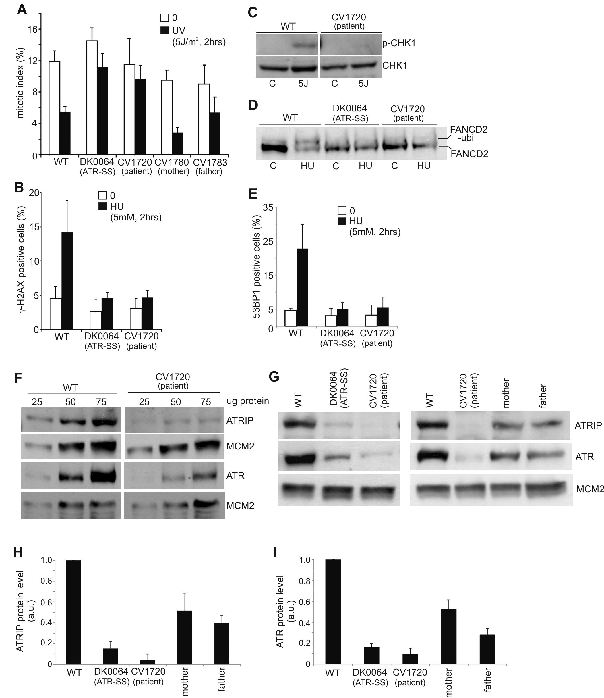 CV1720 cells show impaired ATR–dependent DNA damage responses.