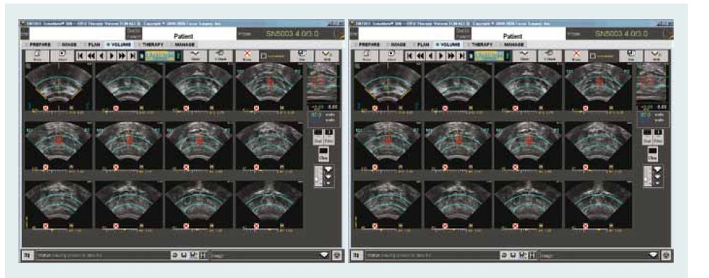 HIFU – kontrolní obrazovka ukazuje příčný řez prostatické žlázy (levá obrazovka) a sagitální řez (pravá obrazovka) s barevně označenou oblastí ablace.
