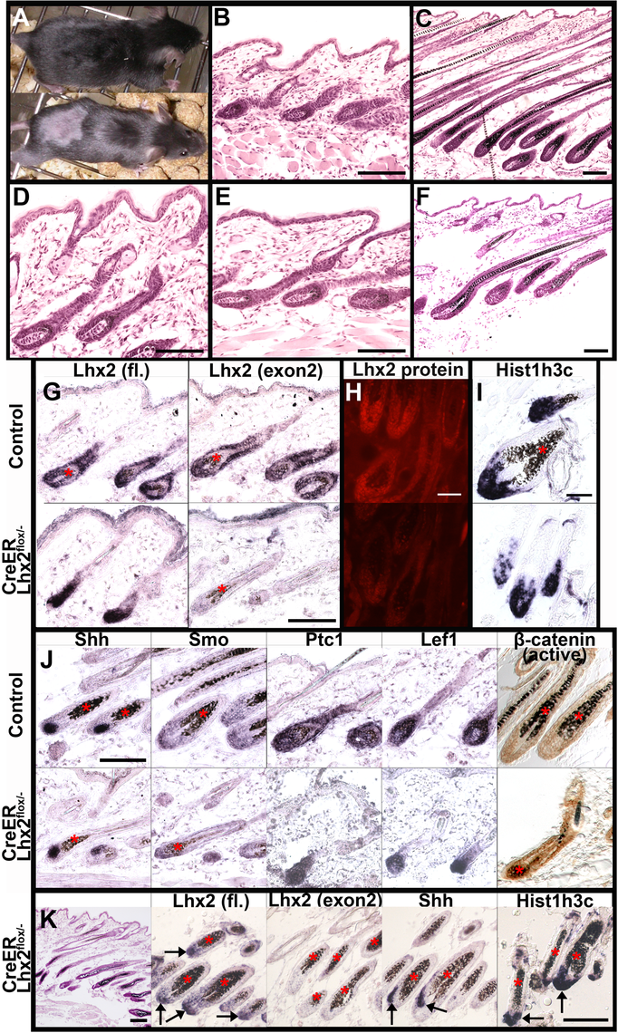 Lhx2 is required for anagen progression.
