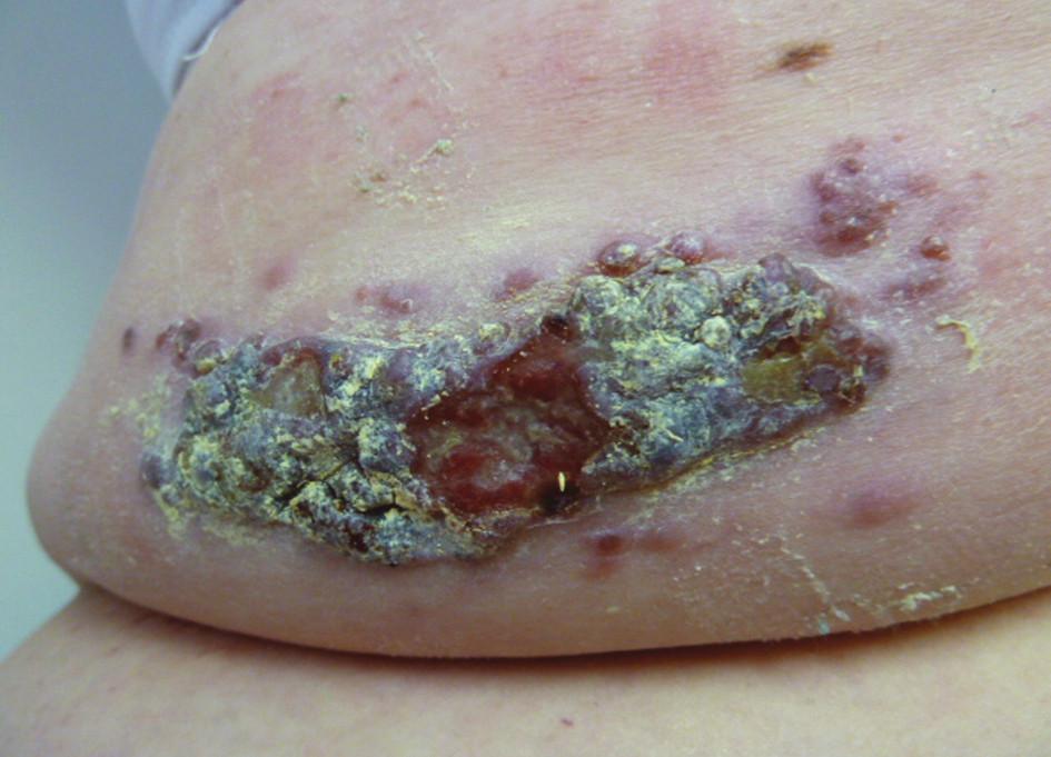 Maligní melanom zad Fig. 4: Malignant melanoma of the back
