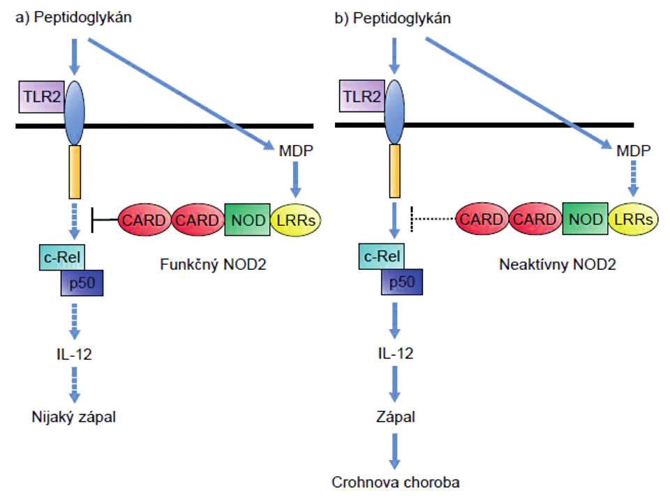 Vplyv mutácie NOD-2 na signalizáciu cez receptor TLR-2  Peptidoglykánmi indukovaná signalizácia cez TLR2 vedie aktiváciou transkripčného faktora NF-κB (cRel – p50) k produkcii IL-12 a tým k polarizácii imunitnej odpovede do T<sub>H</sub>1-smeru. Signalizácia cez NOD-2, ktorý rozpoznáva muramyldipeptid, inhibuje signalizáciu cez TLR2 (ľavá časť obrázku). Pri mutácii génu NOD-2 dochádza k výpadku negatívnej kontroly aktivity TLR2 a tým premrštenej aktivácii T<sub>H</sub>1-imunitnej odpovede (pravá časť obrázku). Figure 1. Effect of the NOD-2 mutation on signalling through the TLR-2 receptor Peptidoglycan induced signalling through TLR2 leads to activation of the transcription factor, NF-κB (cRel – p50), and consequently to the production of IL-12, thus polarizing the immune response toward the T<sub>H</sub>1 direction. Signalling through NOD-2, which recognizes muramyl dipeptide, inhibits signalling through TLR2 (see the left part of the picture). Mutation of the NOD-2 gene results in the lack of negative control of TLR2 activity and thus in an enhanced activation of the T<sub>H</sub>1 immune response (see the right part of the picture).