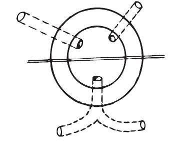 Goodsallovo pravidlo Fig. 1. Goodsall's rule