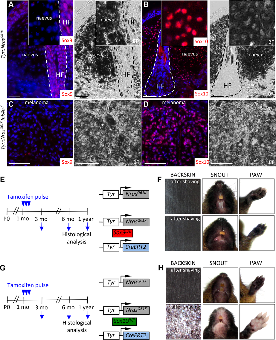 Mouse giant congenital naevi and melanoma reveal no expression of Sox9.