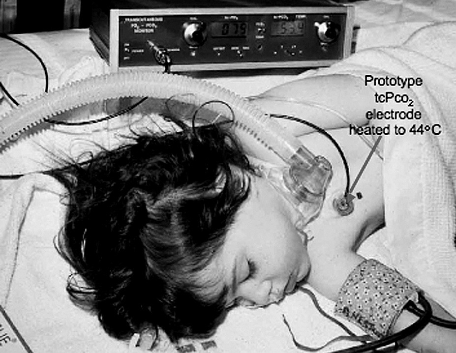 The combined transcutaneous PO2-PCO2 electrode monitoring a child postoperatively