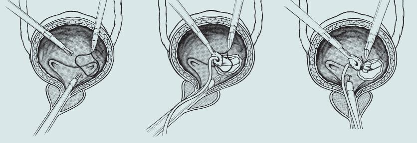 """Schéma 4. """"Clevelandská modifikace"""" excize ureterovezikální junkce – výkon je asistován transvezikálně zavedenými dvěma porty umožňujícími podvaz ureteru."""