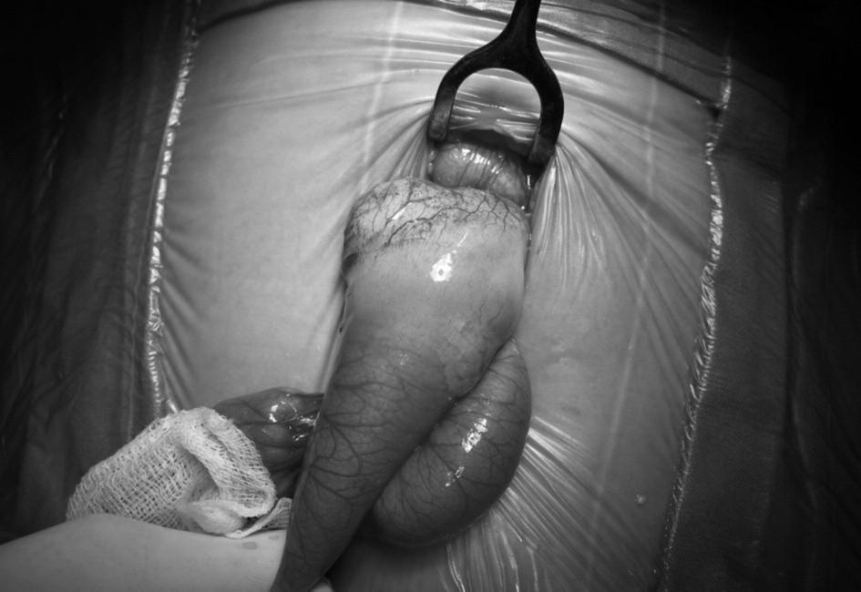 "Črevná kľučka – jejunum s duplikatúrou. V stene ostrovčeky ""karfiolovitého"" tkaniva neskôr patológ identifikoval ako ektopický pankreas. Fig. 2. Intestinal loop – jejunum with duplication. In the wall there are islets of ""cauliflower-like"" tissue which pathologist later identified as ectopic pancreas."
