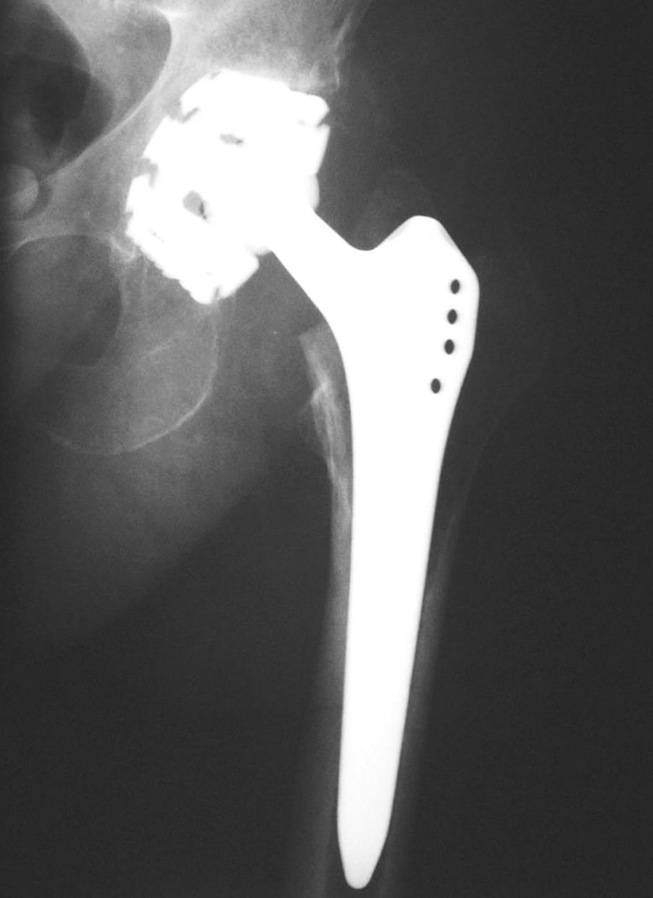 Implantovaná totální endoprotéza kyčelního kloubu.