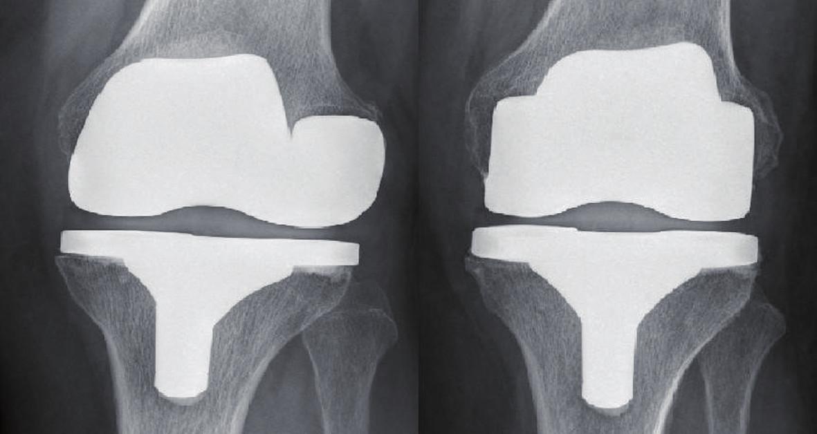 Asymetrické a symetrické postavení femorální komponenty