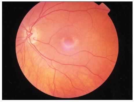 Bull's eye maculopathy