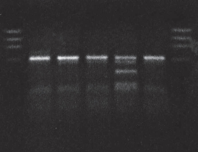 MaeII restricton of PCR product: proband in gCJD<sup>E200K</sup> affected family.