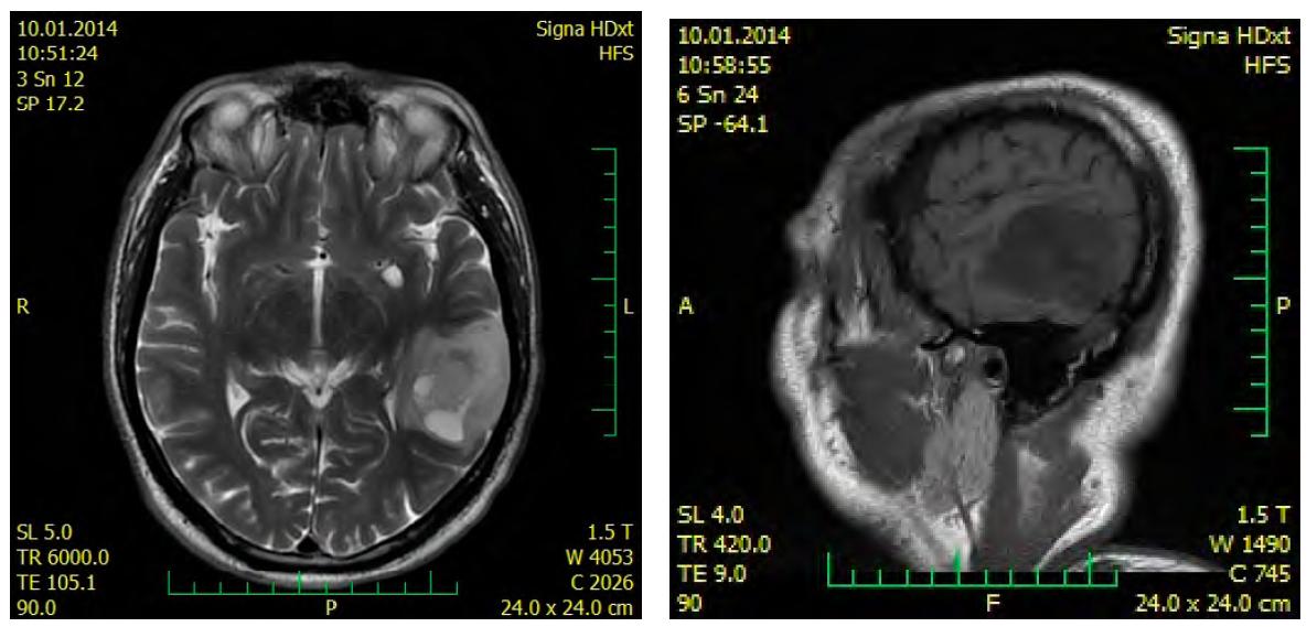 MRI před resekcí tumoru v r. 2014