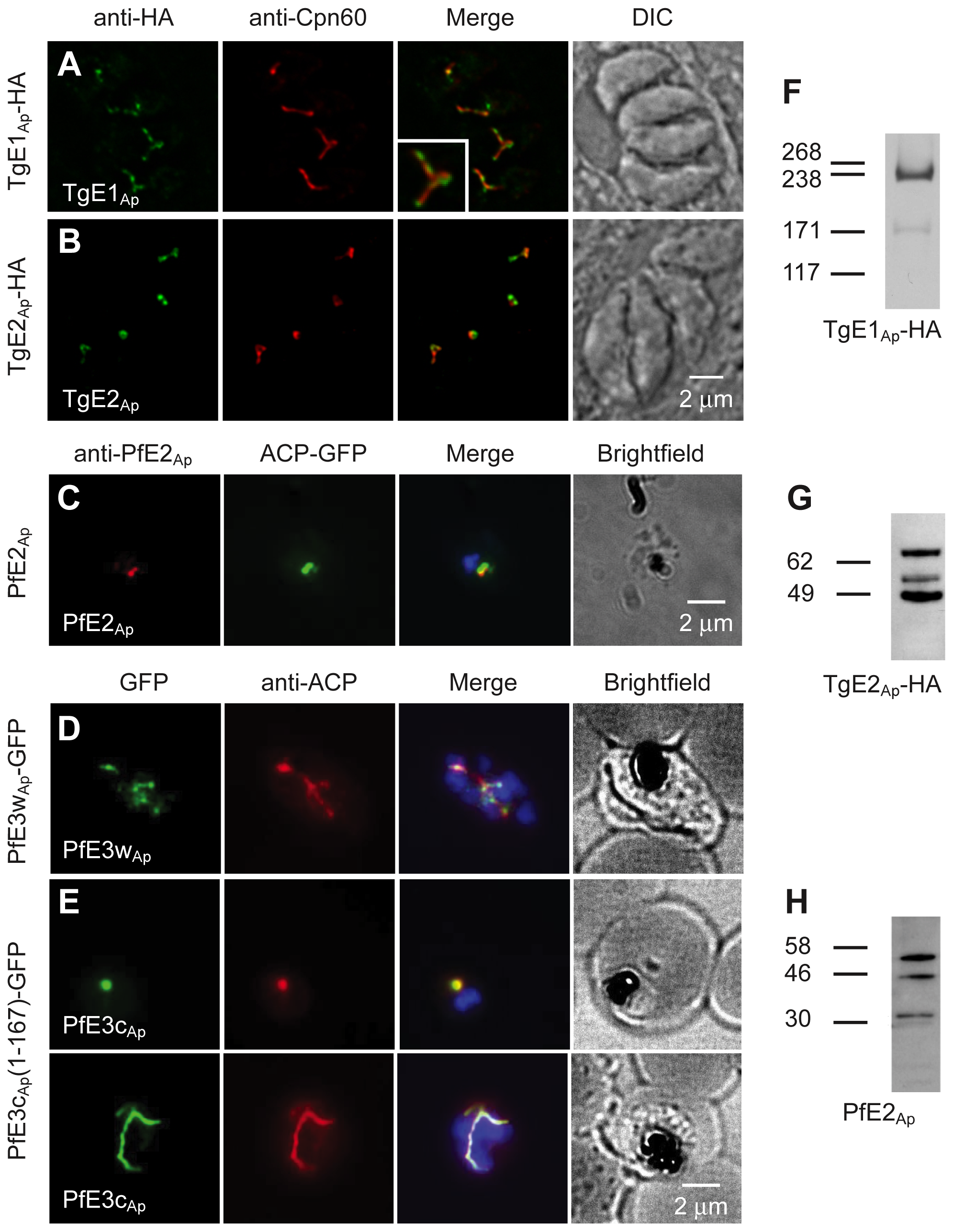 Ubiquitylation proteins localize to the apicoplast in <i>Plasmodium falciparum</i> and <i>Toxoplasma gondii</i>.