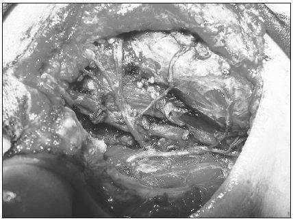 Vetvenie n. VII. vpravo po odstránení príušnej žlazy