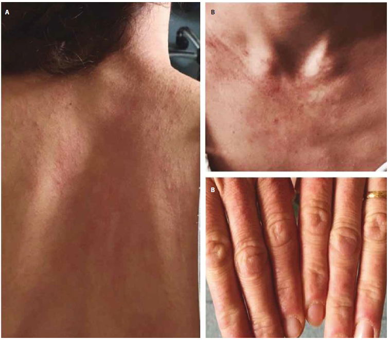 Fig. 1. A) Erythema across the upper back (Shawl sign); B) Erythema of the upper chest (V-sign); C) Bilateral symmetric Gottron's papules and periungual telangiectasies on interphalangeal joints.