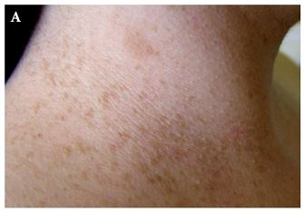 Hyperpigmentace na krku (A) a v axille (B) Dříve označovaná jako Croweho znamení, nyní jako freckling.