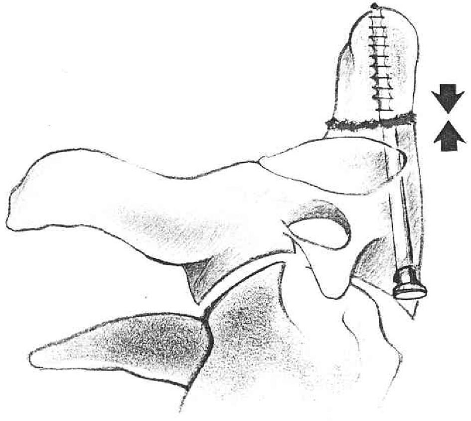 Kompresní osteosyntéza šroubem Fig. 2. Comression osteosynthesis with a screw