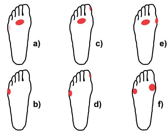 Rozložení plosky nohy. Popis v textu.