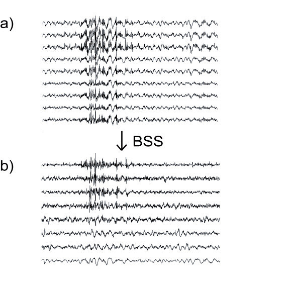 Fig. 3: a) Original measured EEG dataset with artifact. b) Several separated EEG and EMG sources.