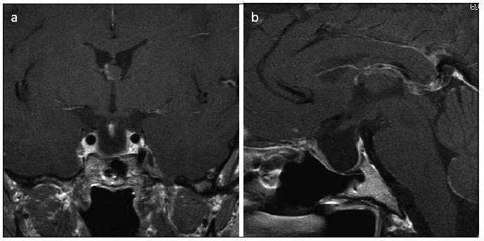 Obr. 4a, b. MR 12 měsíců po operaci prokazující MR radikální resekci adenomu hypofýzy (koronární a sagitální řez).