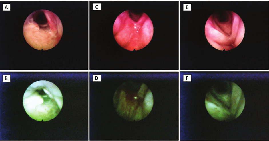 Figs. 2 Changes in the AF images after the treatment.