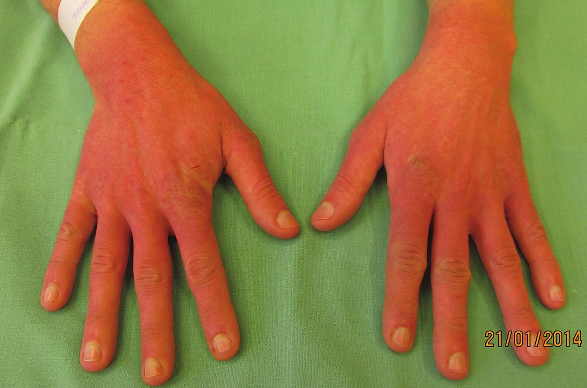 Rukavicové postižení rukou, erytém až purpurový nádech kůže